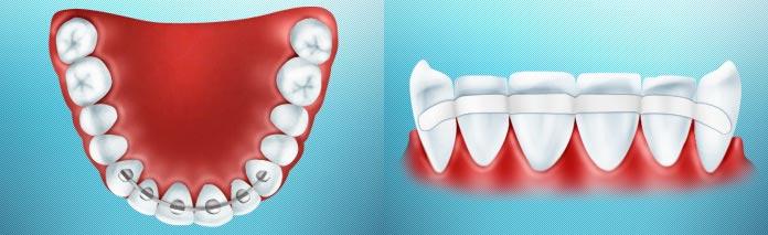 Нужно ли депульпировать зубы для шинирования