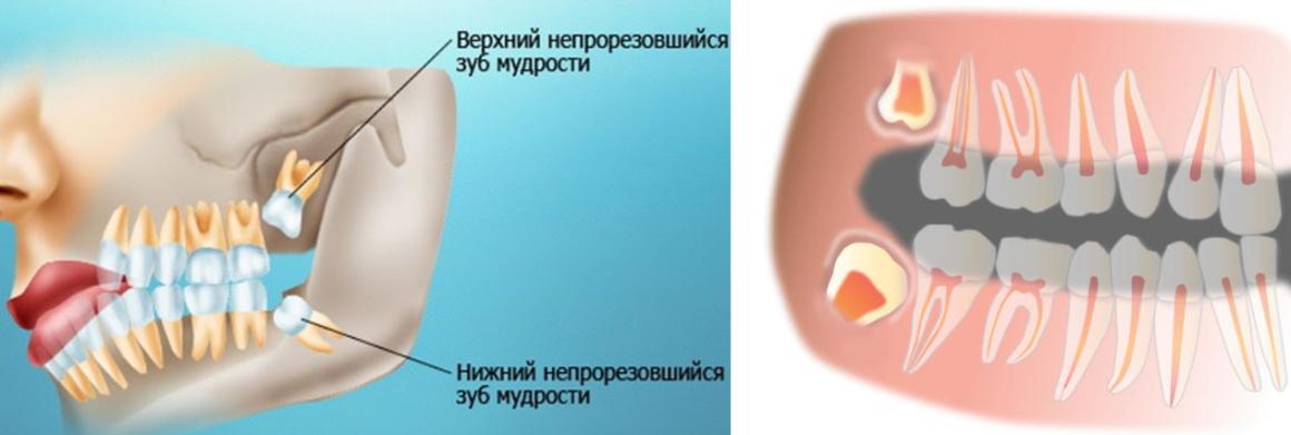 Что делать если после удаления зуба мудрости боли