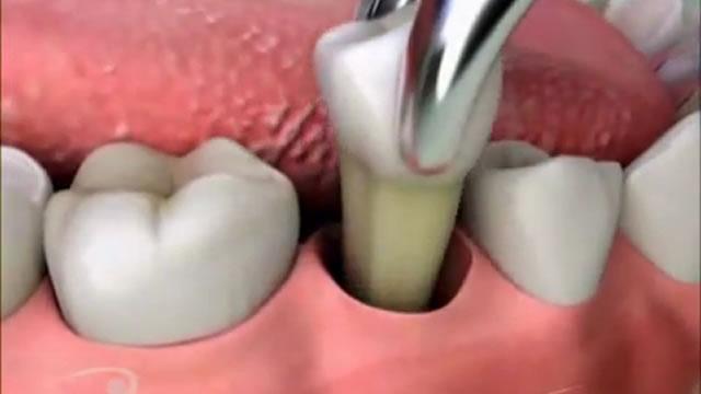 """Острая зубная боль: причины, куда обратиться - ООО """"САФ-МЕД"""" Сеть стоматологических клиник"""